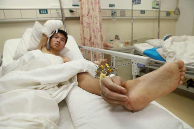 แพทย์จีนทำสยอง! ผ่าตัดปลูกถ่ายข้อมือมาใส่ข้อเท้า