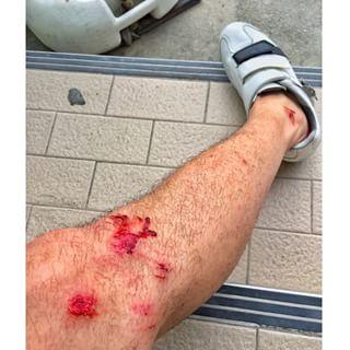 """โถ่ ๆ จักรยานเจ้ากรรม ทำพิษ ประทับตรารอยแผล """"โดม ปกรณ์ ลัม"""""""