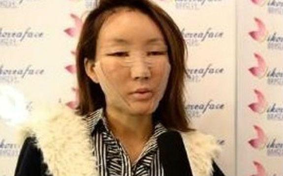 เปิดอกนางแบบจีน Chen Yi Man เผยศัลยกรรมเปลี่ยนชีวิต!!