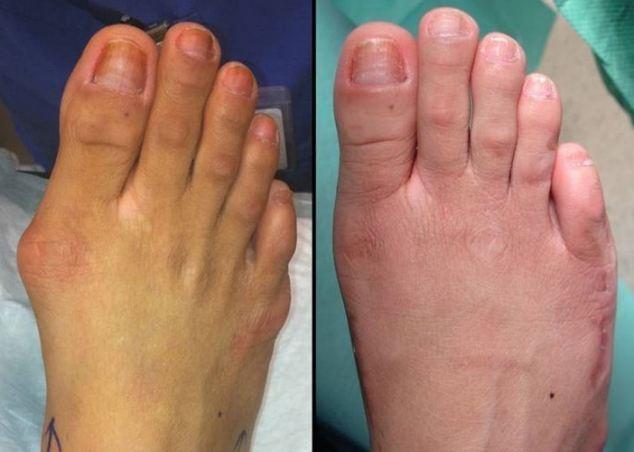 """""""สาวมะกัน"""" แห่พึ่งมีดหมอ ศัลยกรรมเท้าให้พอดีรองเท้าคู่โปรด"""