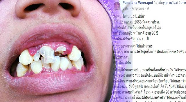 สาววัย 20 ต้องถอนฟันทิ้งหมดปาก เพราะเสียรู้ให้กับแฟชั่นราคาถูก #นี่ฟันหรือ…?