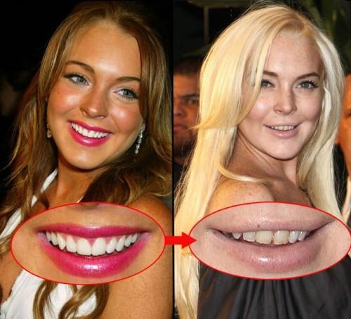 เหล่าคนดังก่อน-หลังทำฟัน หน้าเปลี่ยนจริง !