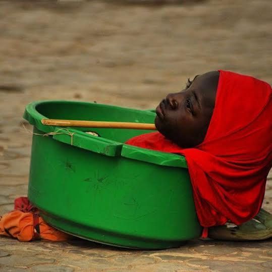 หญิงวัย 19 แขนขากุด ต้องใช้ชีวิตในกะละมัง