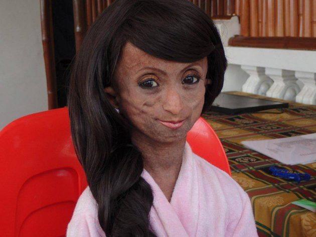 ร่วมไว้อาลัย! วัยรุ่นสาวที่หน้าแก่ที่สุดในโลก ได้จากไปแล้วด้วยวัยเพียง 19 ปี ด้วยโรคแก่เร็วกว่า 8 เท่า