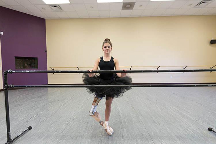 """ยอดนักสู้!!! """"สาวน้อยผู้ชื่นชอบการเต้นเป็นชีวิตจิตใจ"""" เเม้ต้องสูญเสียขาจากโรคร้าย!!!"""