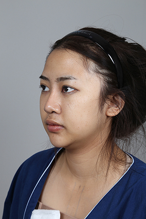 แม่เจ้า!!! สาวไทย..ศัลยกรรม-ลงทุนไปโมหน้าใหม่-ที่เกาหลี…ทั้งทำหน้า-ดูดไขมันทั้งตัว…ทำขนาดนี้-ผลลัพธ์ที่ได้คุ้มมาก!!!!