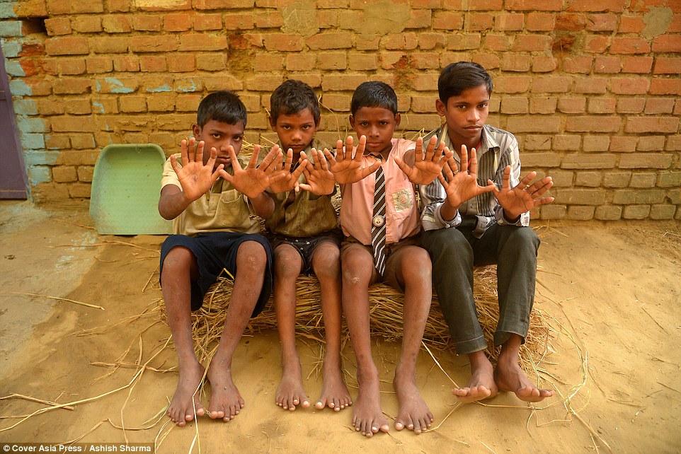 """เเปลกเเต่จริง!!! """"ครอบครัวชาวอินเดีย 25 คน"""" ที่เกิดมามีนิ้วมือนิ้วเท้า 24 นิ้ว เหมือนกันหมดทุกคน!!!"""