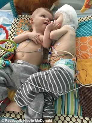 """""""แพทย์ใช้เวลาผ่าตัดนาน 27 ชั่วโมง"""" เพื่อช่วยเหลือเเฝดที่เกิดมามีศีรษะติดกัน!!!"""