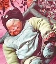 """หัวใจน่ากราบ!! """"หญิงจีนพบทารกถูกไฟไหม้ ถูกทอดทิ้งอยู่ข้างถนน"""" จึงเก็บมาเลี้ยงดู มานานกว่า 22 ปีเเล้ว!!!"""