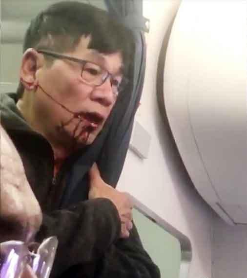 "CEO ""ยูไนเต็ด แอร์ไลน์ส"" ขอโทษผู้โดยสารชาวจีน หลังเกิดเหตุทำร้ายผู้โดยสารจนถูกวิจารย์ไปทั่วโลก!!! (ชมคลิป)"