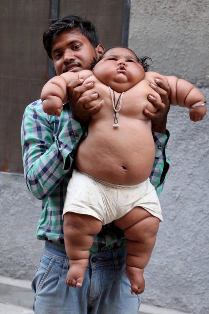 """เเปลกเเต่จริง!!! """"หนูน้อย วัย 8 เดือน"""" เเต่มีน้ำหนักเท่าเด็กวัย 4 ขวบ!!!"""