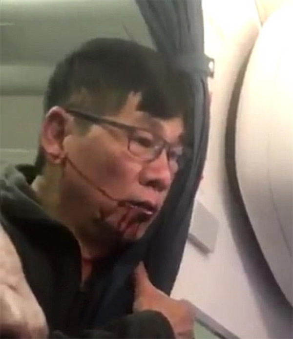 """นักกฏหมายเผย!! """"เหยื่อถูกรปภ.ทำร้าย"""" มีโอกาสที่จะได้รับเงินจำนวนมหาศาล หากฟ้องสายการบิน!!!"""