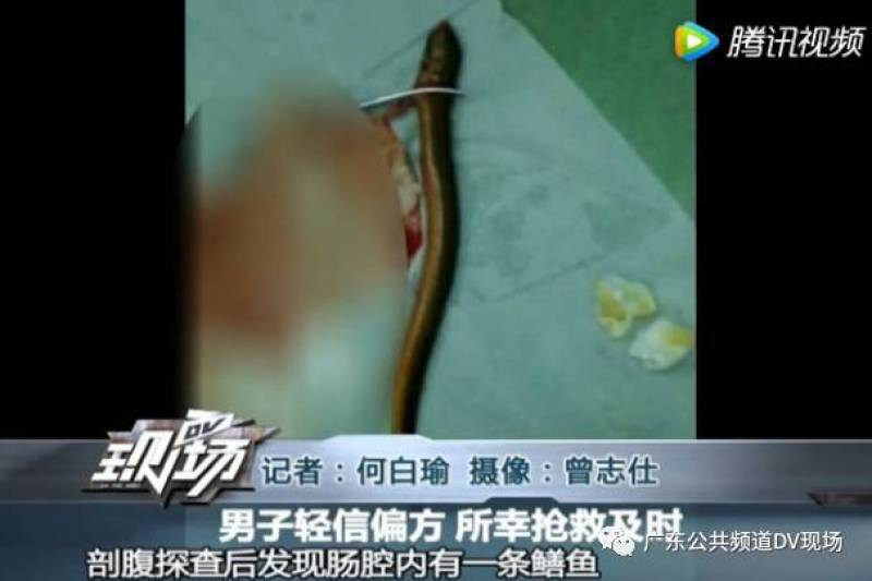 เกือบตาย! หนุ่มจีนจับปลาไหลยัดก้น จนมันเลื้อยทะลวงไปยันลำไส้