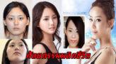 เทียบกันชัดๆภาพ Before & After ของ 61 คนที่ทำศัลยกรรมที่เกาหลี