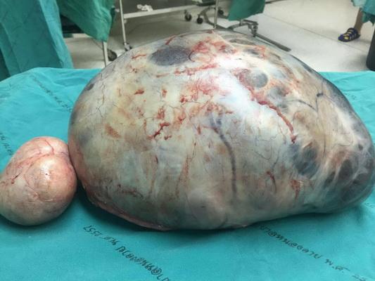 แพทย์ตะลึง ผ่าเนื้องอกรังไข่หญิงลาว ใหญ่มหึมาหนักกว่า 8 กิโล
