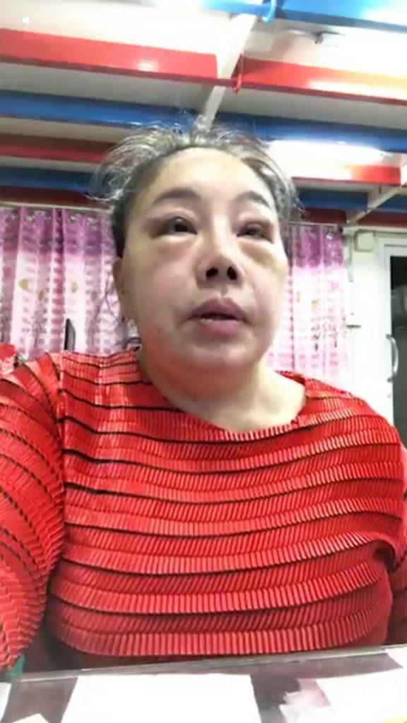ลีน่า จัง โชว์หน้าสด หลังไปเสริมความงาม!!