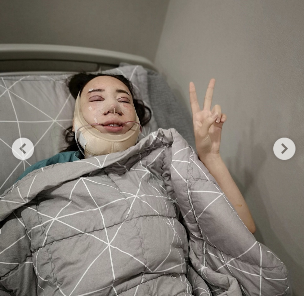 เปิดภาพ ! น้ำเพชร หลังศัลยกรรม 50 ล้าน ให้ใบหน้าเหมือน อั้ม พัชราภา ล่าสุด ใบหน้าเริ่มอยู่ตัว สวยใสน่ารัก
