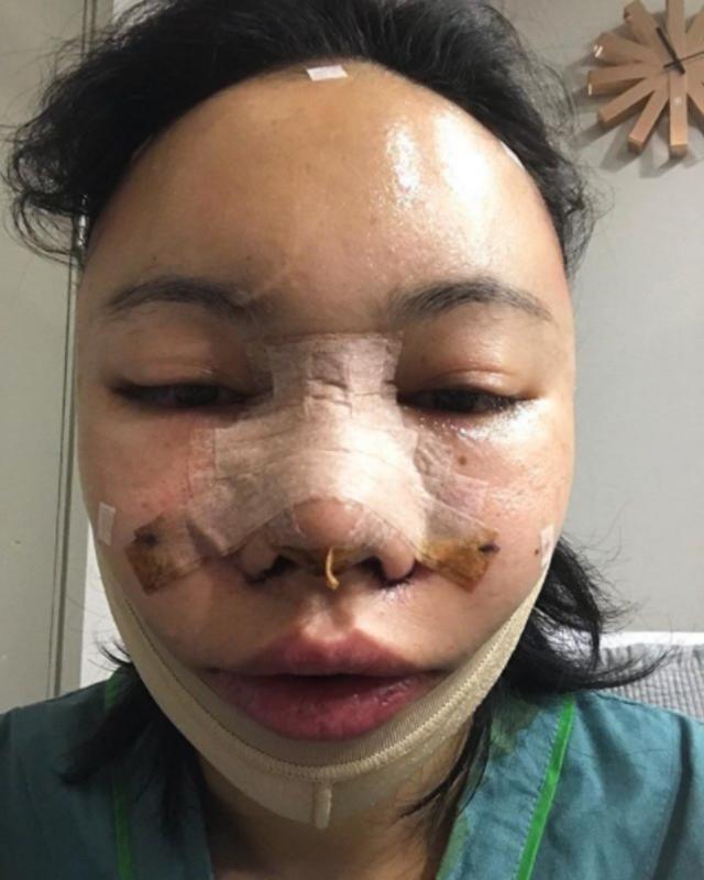 เปิดภาพ ! เอมมี่ อมลวรรณ กับสภาพใบหน้าล่าสุด หลัง ศัลยกรรม 3 ล้าน ให้เหมือนดาราสาวที่ชอบ