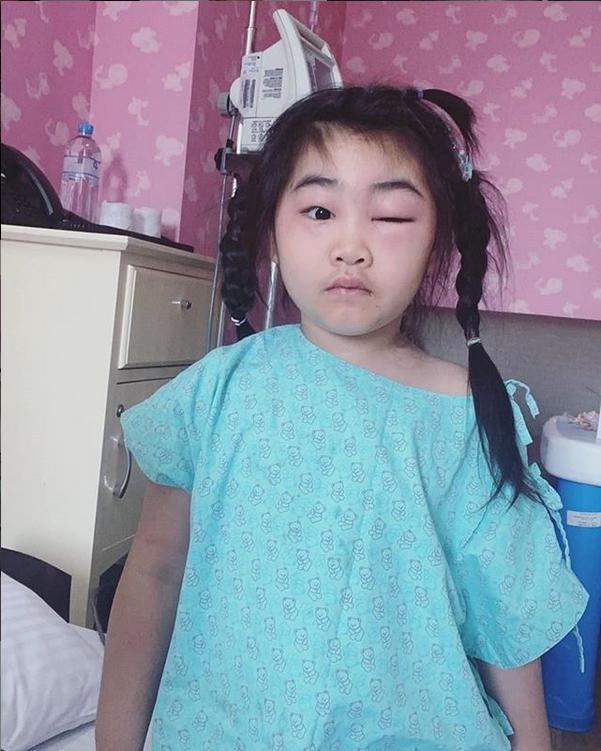กอล์ฟ ฟักกลิ้งฮีโร่ เผยภาพลูกสาว น้องชูใจ ตาบวมมาก!! โดยไม่ทราบสาเหตุ?